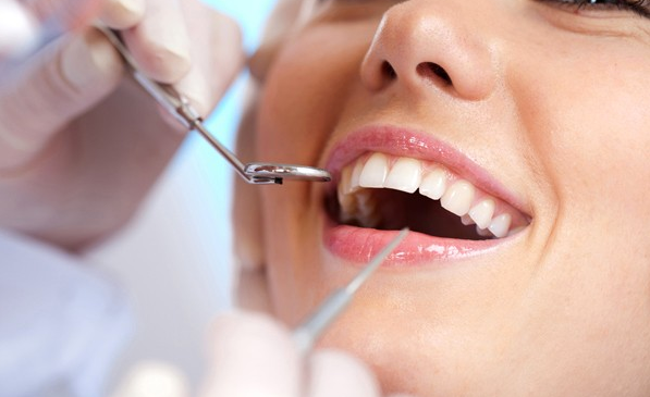 Important FAQs about Dental Implants